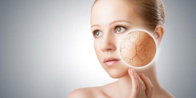 dry-skin (1)