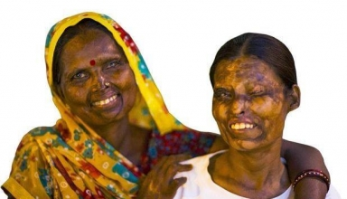 acid attack survivors government jobs